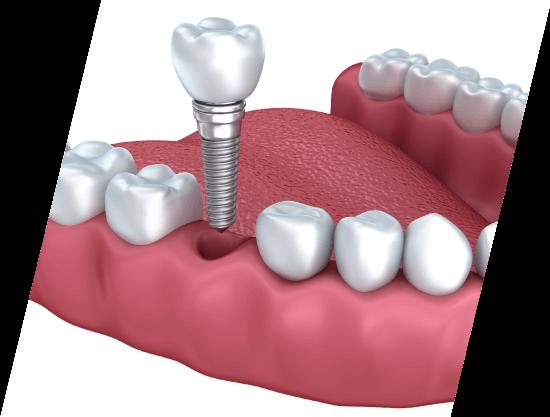 illustration of a dental implant