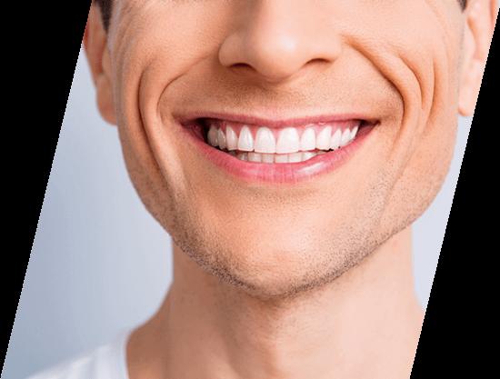 upclose white smile