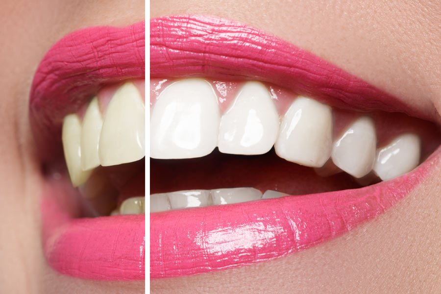 Close-up split smile showing half after teeth whitening