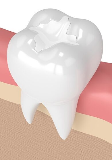 Model of a tooth with a dental sealant